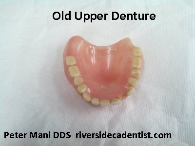 An old upper denture.  Worn back teeth and missing front tooth.  Broken denture base.