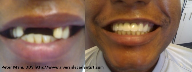 Example of a bridge by Peter Mani, DDS