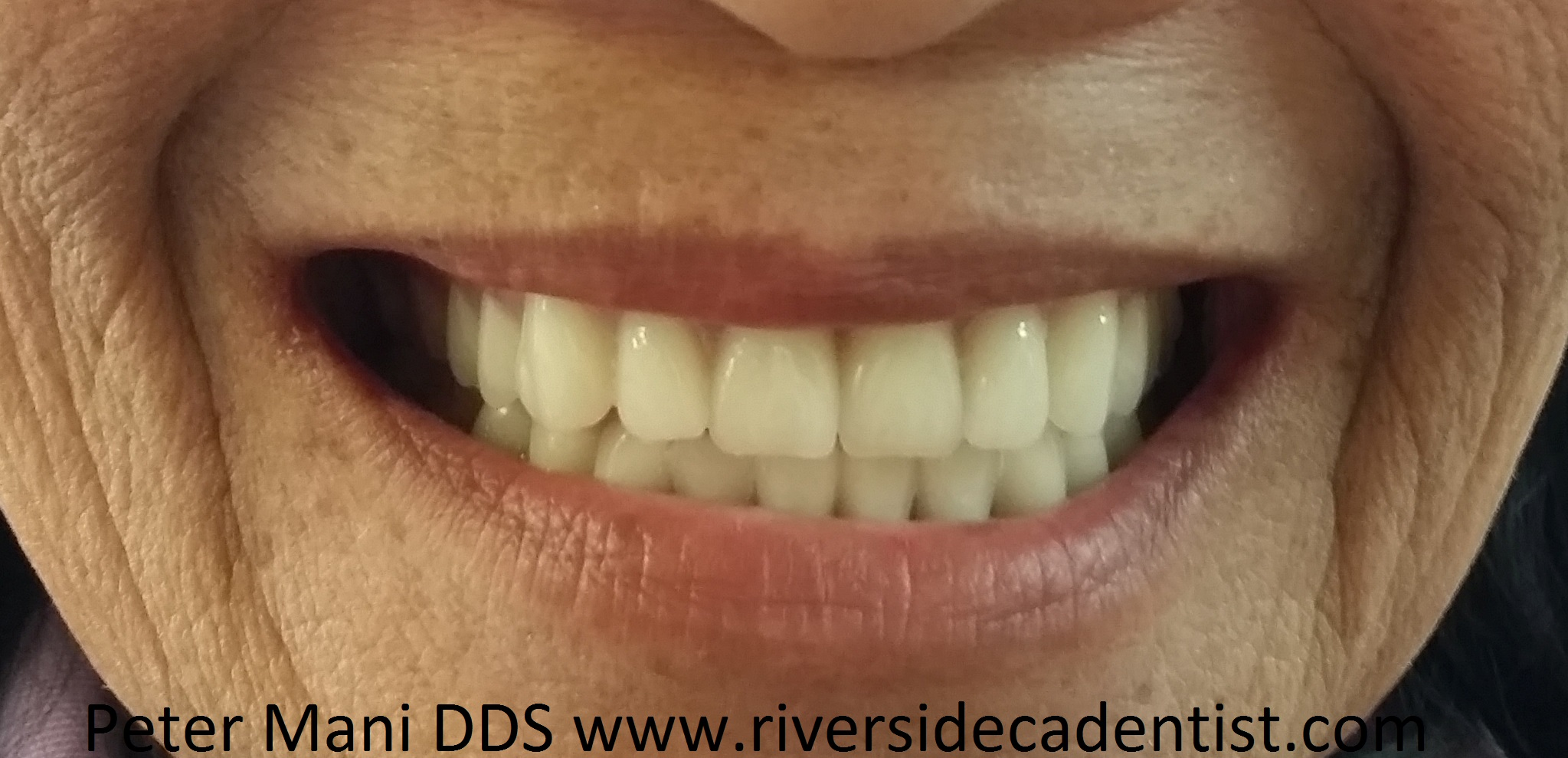 Dentures by Peter Mani DDS part 1